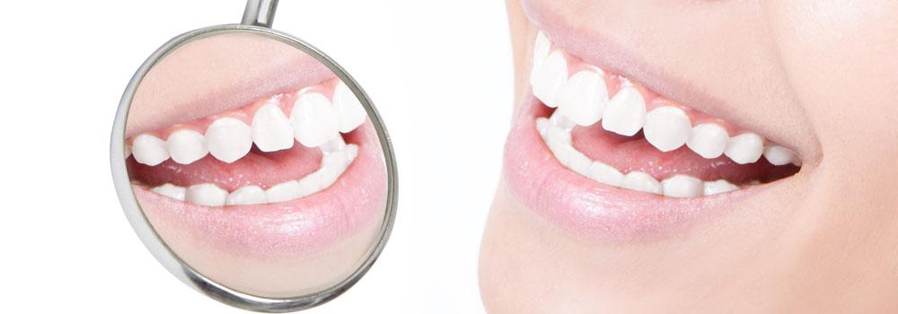 審美歯科の治療の有名病院と人気ランキング