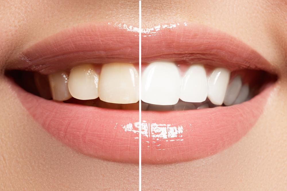 歯のホワイトニングの有名病院と人気ランキング