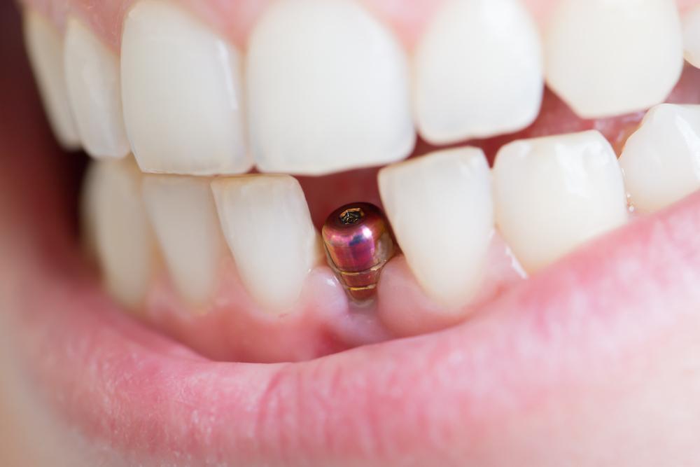 歯 インプラントの有名病院と人気ランキング