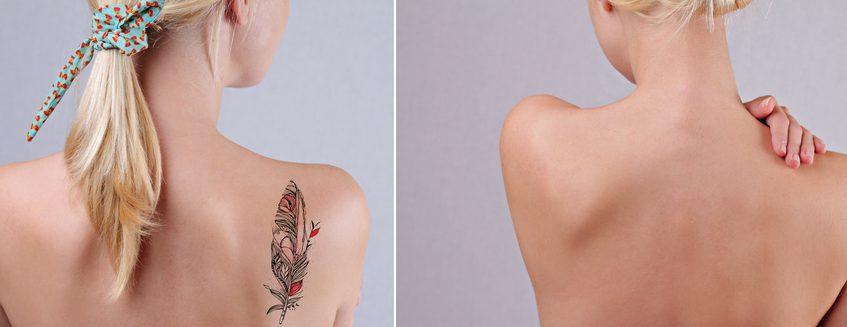 刺青除去・切除の有名病院と人気ランキング