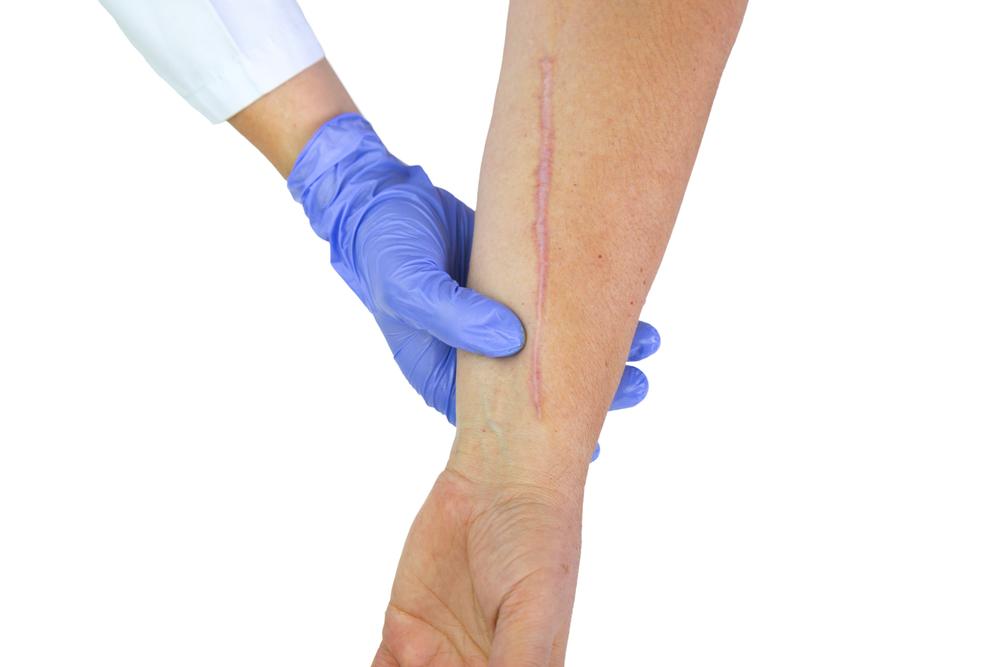傷痕形成の有名病院と人気ランキング