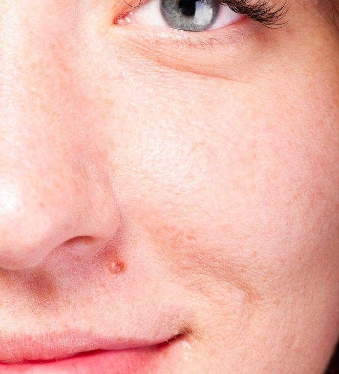 しこり除去(粉瘤アテローム)の有名病院と人気ランキング