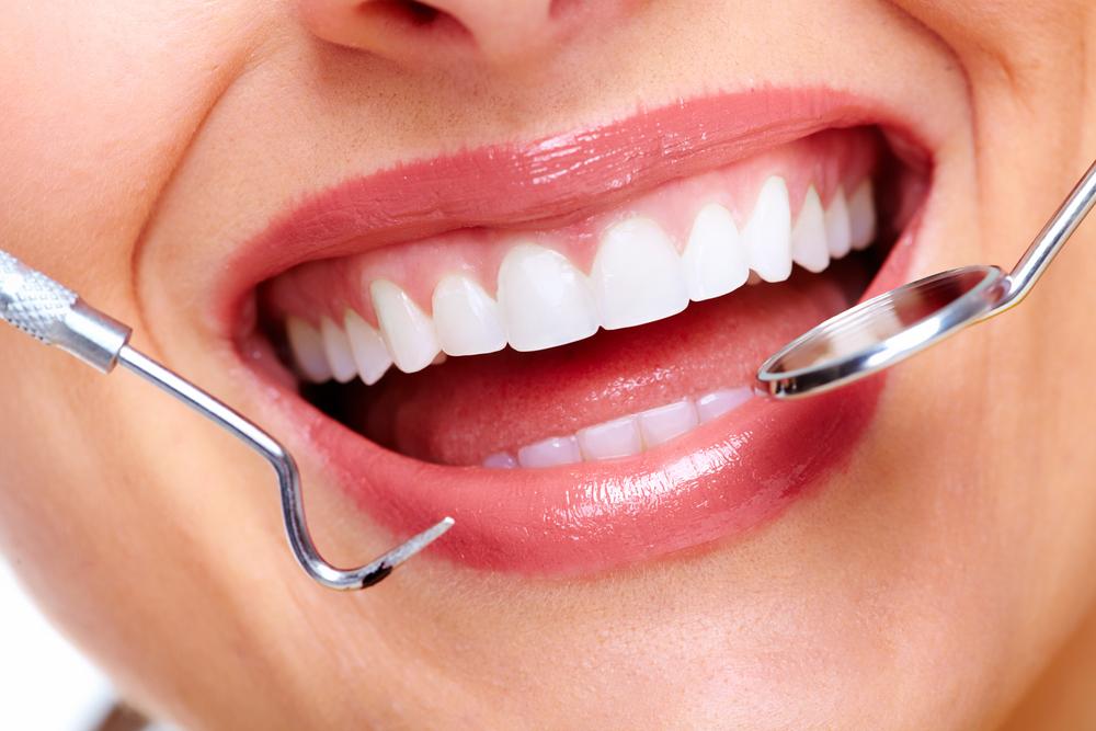 審美歯科 詰め物治療の有名病院と人気ランキング