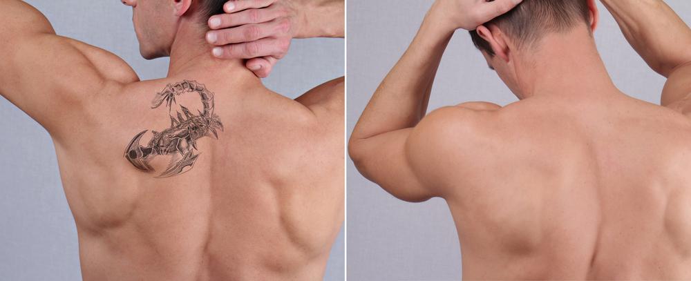 タトゥー・入れ墨 皮膚剥削法の有名病院と人気ランキング