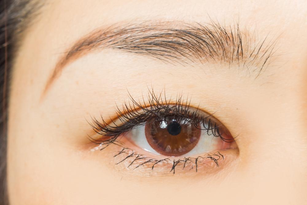 目尻のしわの美容整形の有名病院と人気ランキング